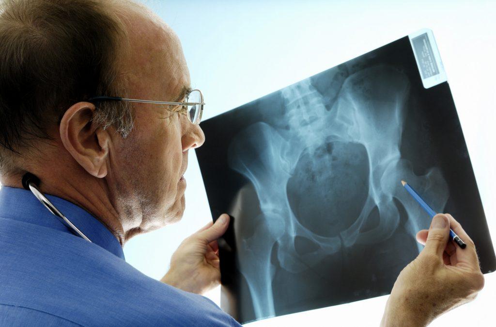 Atlanta Orthopaedic Surgeon